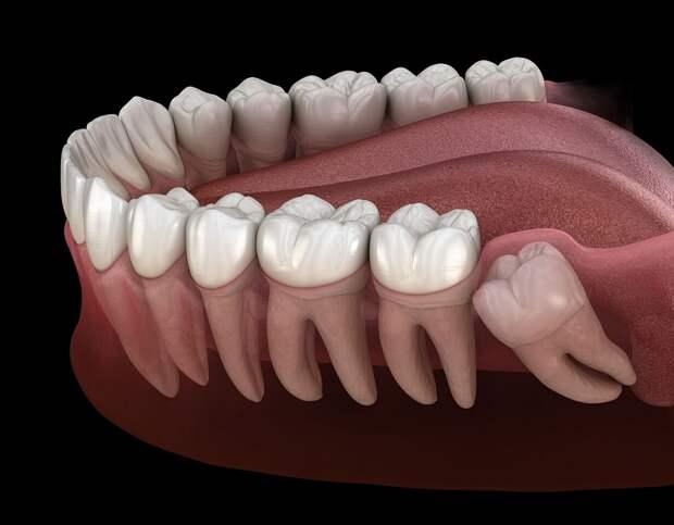 Мы продолжаем эволюционировать, причем быстрее: люди стали рождаться без зубов мудрости