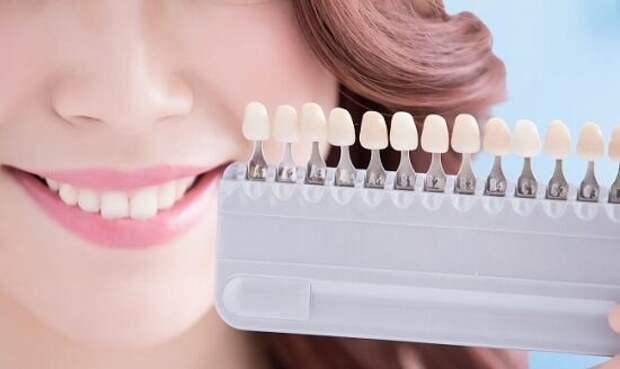 Отбеливание зубов в домашних условиях: лучшие народные методы