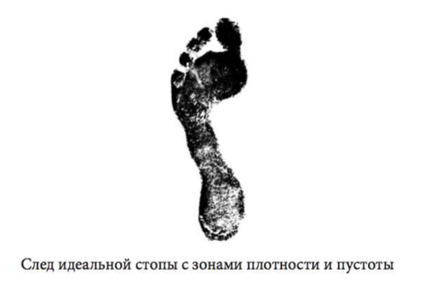 Для чего организм выращивает косточку у большого пальца и как это прекратить