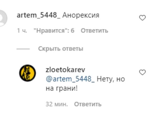Похудевшая Валерия в черном купальнике-бандо и очках-маске впечатлила стилиста Пугачевой