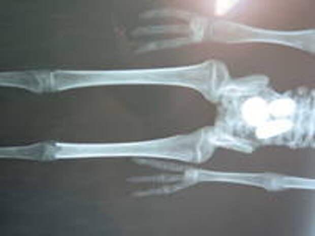 Жозефина. Рентгенограмма