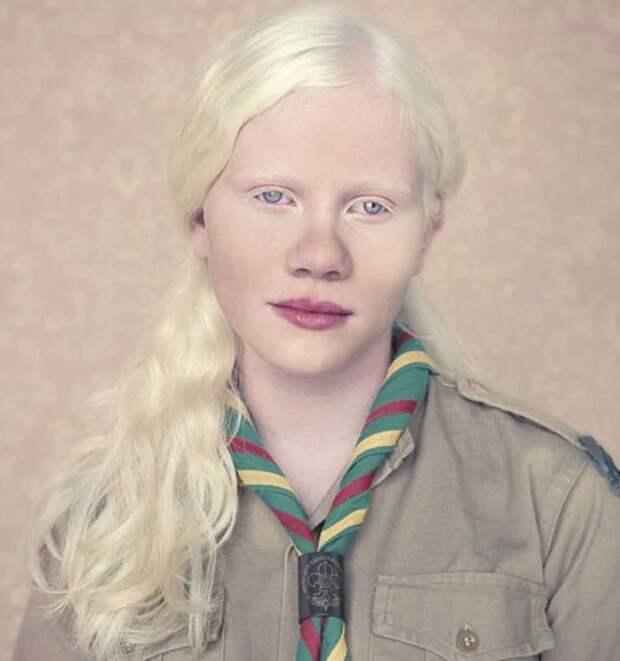 13. Альбинизм генетика, кровосмешение, мутация, последствие