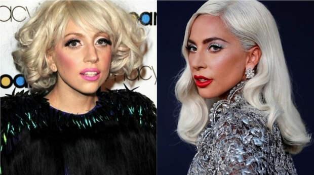 10+ знаменитостей, чей образ кардинально изменился с начала 2000-х