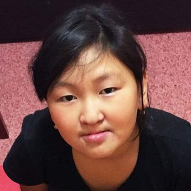 Вика Чараганова, 10 лет, расщелина альвеолярного отростка, недоразвитие челюсти, требуется ортодонтическое лечение, 163980₽