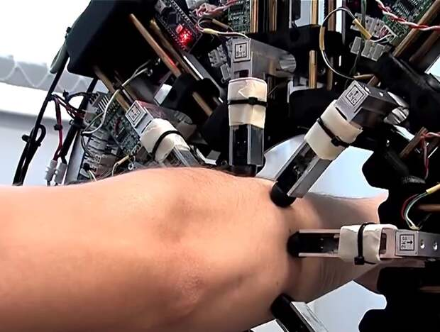 Российские ученые изобрели 3D-сканер для создания удобных протезов для рук