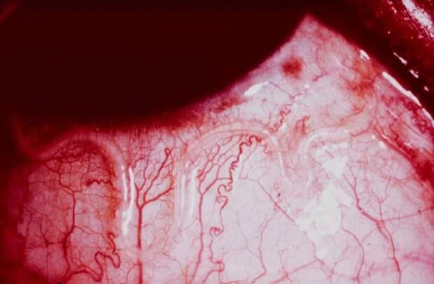 глазной червь
