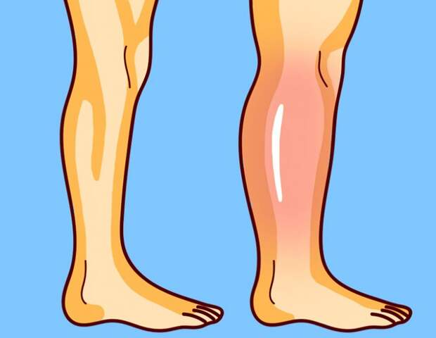 Упражнения от остеопата для снятия отёков ног