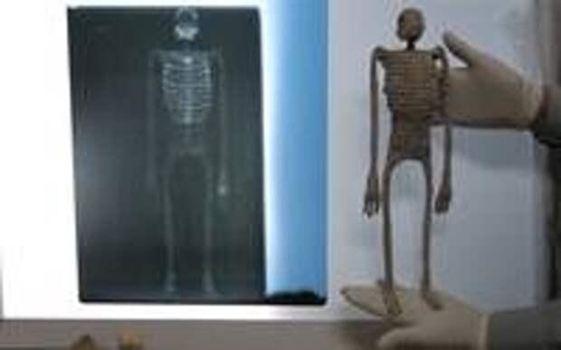 Мумия E.B. (справа) и её рентгенограмма (слева)