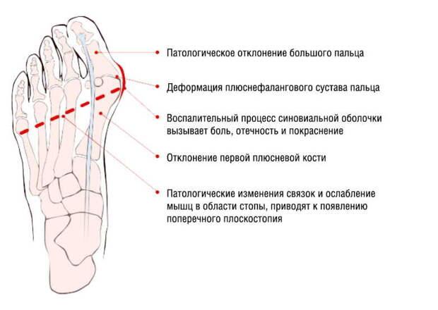 Косточки на ногах: избавляемся просто и без боли. И операции не нужно!