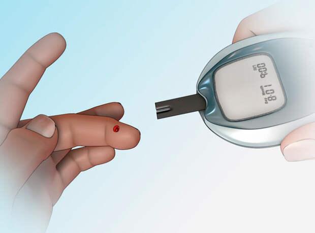 Скрытый аутоиммунный диабет в зрелом возрасте...