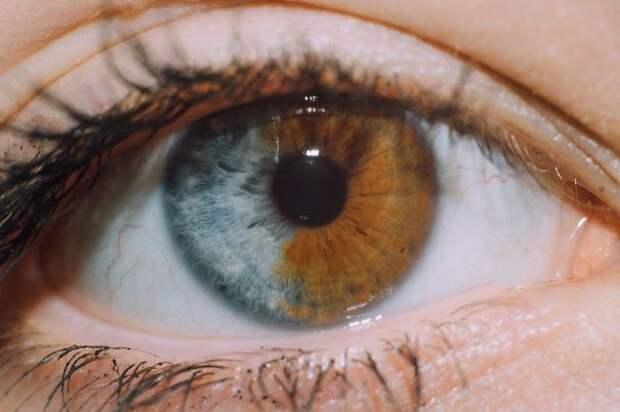 30 людей, которых генетика сделала абсолютно уникальными