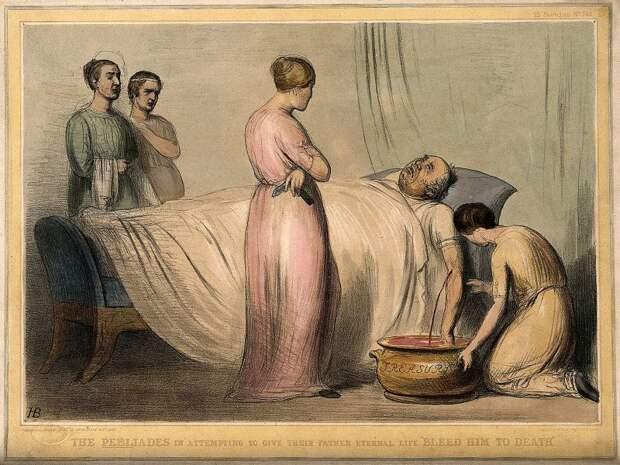 «Отворение крови»: вчем суть лечения кровопусканием, которое часто имело обратный эффект