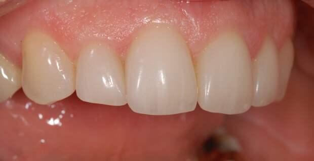 Китайские ученые научились восстанавливать эмаль зубов без пломбирования