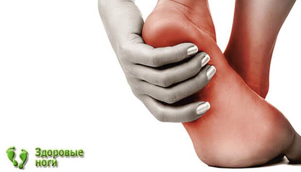 Диабетическая стопа: симптомы и лечение, стадии диабетической стопы, уход зав ногами при сахарном диабете